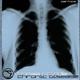 Thomas Grinder Chronic Disease